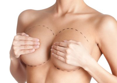 Brustvergrößerung mit Implantat
