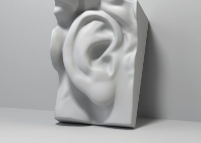 Otoplastik / Ohrenanlegen