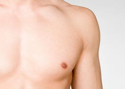 Gynäkomastie / Männliche Brust
