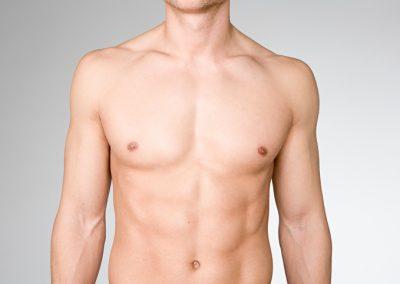 Liposuktion / Fettabsaugung beim Mann